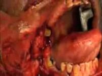 Carotid  Artery  Glomus  Chemodactoma  tumor  Surgery  Head  Neck