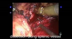 Robotic-Assisted Laparoscopic Spleen-Preserving Distal Pancreatectomy