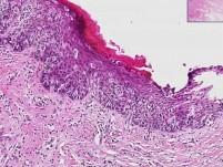 Proliferative endometrium
