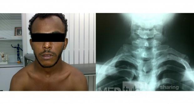 Cervical Ribs