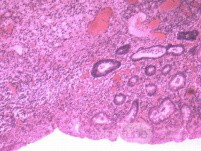 Multiple Rectal Ulcers (107 of 110)