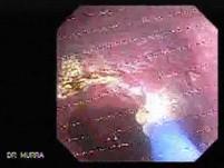 Barrett's Esophagus of long segment (21 of 24)