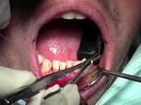 Graft Suturing Technique - Gingival Grafting #26-25-24