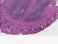 Ulcerative colitis, carcinoma, atypia - Histopathology - Colon