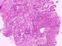 Ovarian Carcinoma Metastatic to Stomach and Duodenum (18 of 20)