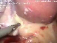 Sleeve gastrectomy with cholecystectomy and mesh hernioplasty