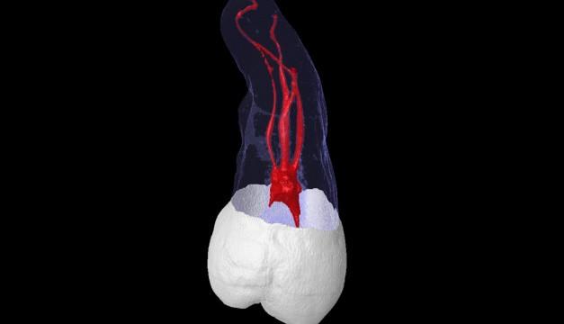 Maxillary Third Molar Root Canal Anatomy Video Medtube