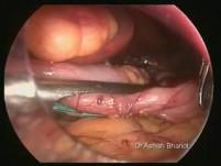 Obesity Surgery - Laparoscopic Sleeve Gastrectomy