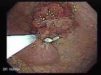 Multilobulated Gastric Polyp (10 of 20)