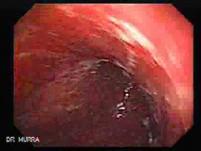 Gastroesophagic Varices - 66 - Year - Old Man (3 of 7)