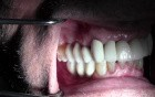 Final Restorations - Implant Reconstruction - #3-5, 7-10, 12-14, 28-30