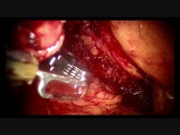 Retroperitoneal Partial Nephrectomy