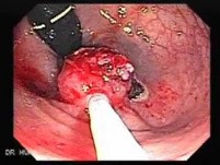 Endoscopic Resection of Giant Tubulo-Villous of the rectum (19 of 35)