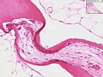 Bone - Hyperparathyroidism