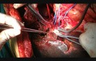 Parenchyma Sparing Hepatectomy with Portal Vein Reconstruction