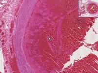 Thromboembolus - Histopathology of lung