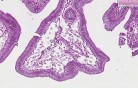 Gallbladder - Cholesterolosis