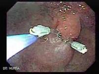Multilobulated Gastric Polyp (8 of 20)