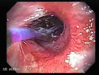 Endoscopic Baloon Dilation Of The Esophageal Stricture - Position Of The Inflated Baloon - 5/8