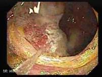 Adenocarcinoma - Cecum (1 of 4)