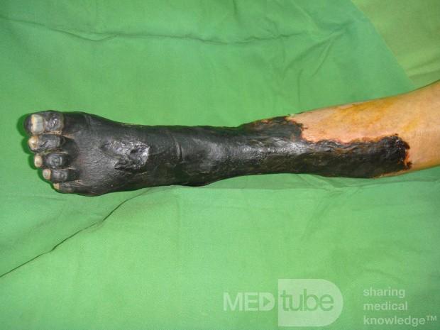 diabetes leg pictures