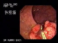 The Sequence Polyp - Carcinoma