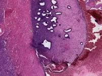 Endometriosis - Histopathology of ovary