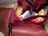 Minimally Invasive Ridge Augmentation