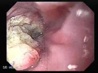 Esophageal Squamous Cell Carcinoma (2 of 5)