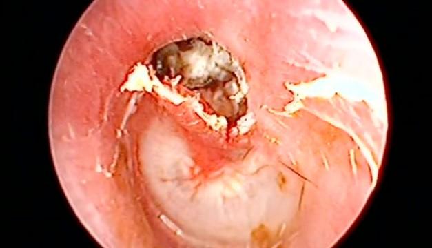 & Left Ear Cholesteatoma with Attic Perforation u2022 Video u2022 MEDtube.net