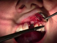 Suturing Technique - Implant Placement #9