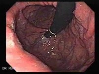 Esophageal Varices and Hiatus Hernia (1 of 3 )