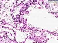Lung, Kidney - Metastatic Calcification