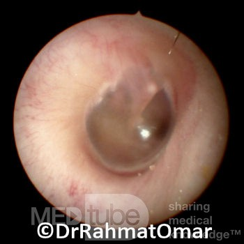 Related Keywords & Suggestions for normal eardrum