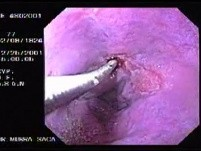 Hemorrhage due status post rubber band ligation of esophageal varices (8 of 25)