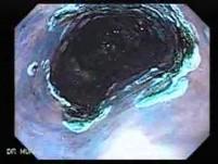 Barrett's Esophagus of long segment (12 of 24)