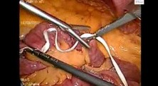 Laparoscopic Choledochal cyst