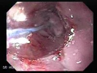 Endoscopic Baloon Dilation Of The Esophageal Stricture - Position Of The Inflated Baloon - 8/8