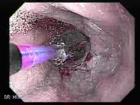 Endoscopic Baloon Dilation Of The Esophageal Stricture - Fast-Forward Video