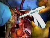 Human Cardiovascular System, Diseases And Heart Transplantation