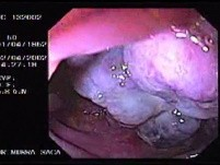 Metastasis Of Renal Carcinoma To The Ascending Colon (1 of 11)