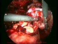 Surgery of Endometriosis - Laparoscopic Method