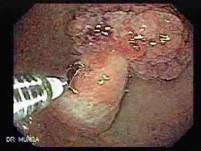 Multilobulated Gastric Polyp (6 of 20)