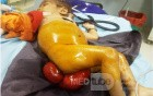 Rectal Prolapse In A Small Child - Other Shot