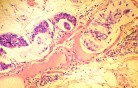 Endoscopy of Scirrhous Gastric Carcinoma involving the entire Fundus, Body and the Antrum (44 of 47)