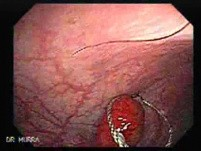 Endoscopic view of Rectal Stalked Polyp (1 of 7)