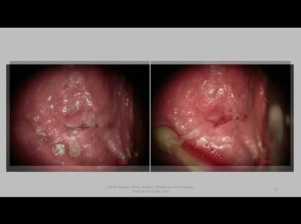 égető a vulva condylomáival férgek hogyan kell megolni