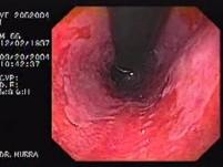 Barrett's Esophagus of long segment (3 of 24)