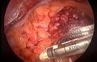 Laparoscopic abdominoperineal resection