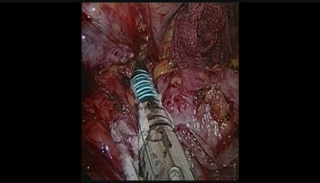 Roux En Y Gastric Bypass Revision Trimming Ring Video